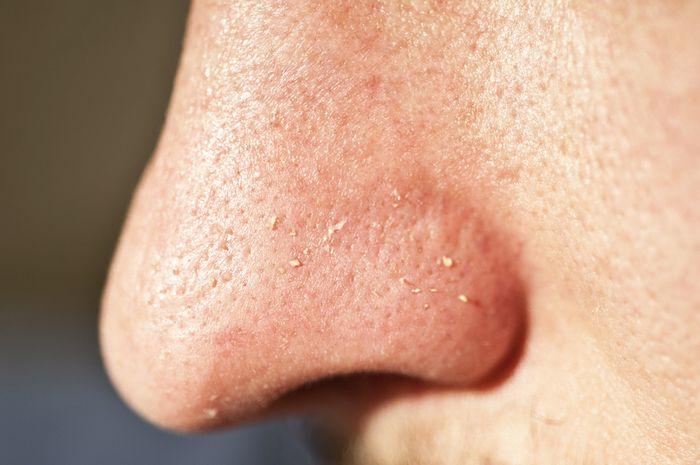 Komedo putih adalah tonjolan putih kecil yang disebabkan oleh pori-pori kulit yang tersumbat.