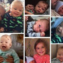 Berita Kesehatan: Heboh Bayi Lahir Penuh Tahi Lalat, Berbahayakah?