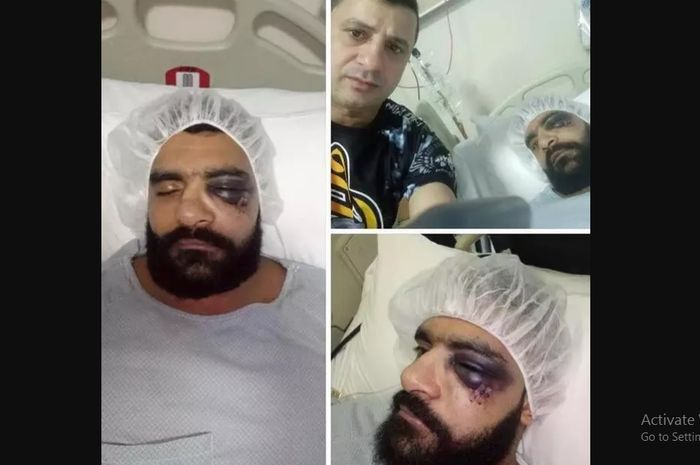 Kondisi Mahmoud Hassan, petarung MMA berjuluk Hulk Mesir pasca KO dalam 8 detik dengan 4 patah tulang.