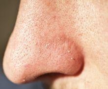 Moms, Begini Cara Mengatasi Komedo di Hidung & Dagu dengan Bahan Alami
