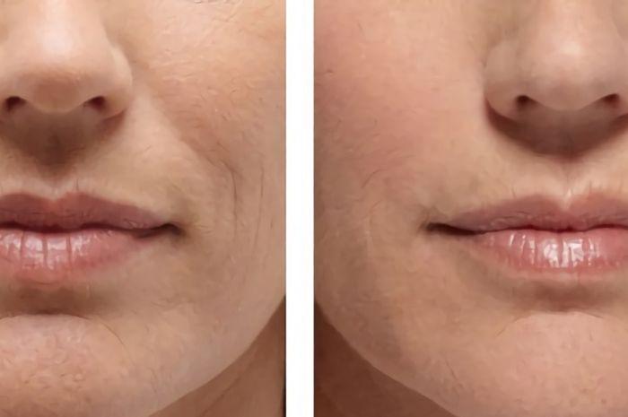 Garis senyum, salah satu bentuk keriput yang muncul di area mulut