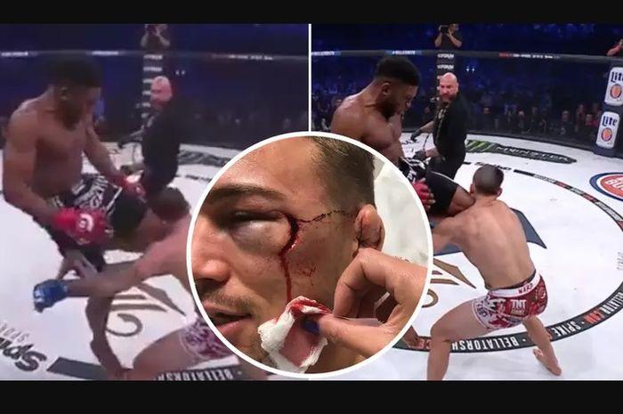 Petarung MMA, Brennan Ward, pernah menerima tendangan lutut yang membuatnya KO daam tempo 10 menit.