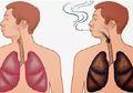 Cara Detoks Paru-paru, Kembali Bersih dan Sehat dalam 72 Jam!